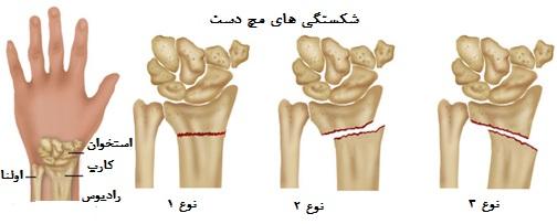 نتیجه تصویری برای شکستگی های مچ دست