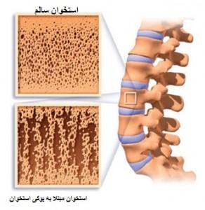 درمان پوکی استخوان با مگنت و فیزیوتراپی - کلینیک فیزیوتراپی بازتوانپوکی استخوان به معنای واقعی کلمه به متخلخل شدن استخوان میانجامد و استخوان  مانند اسفنج تراکمپذیر میشود.