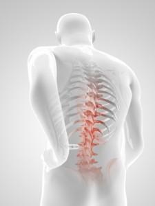 درمان آرتروز کمر و ستون فقرات با فیزیوتراپی و ورزش